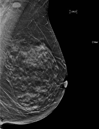 Standard reconstructed 2D mammogram views that are obtained from a digital breast tomosynthesis.