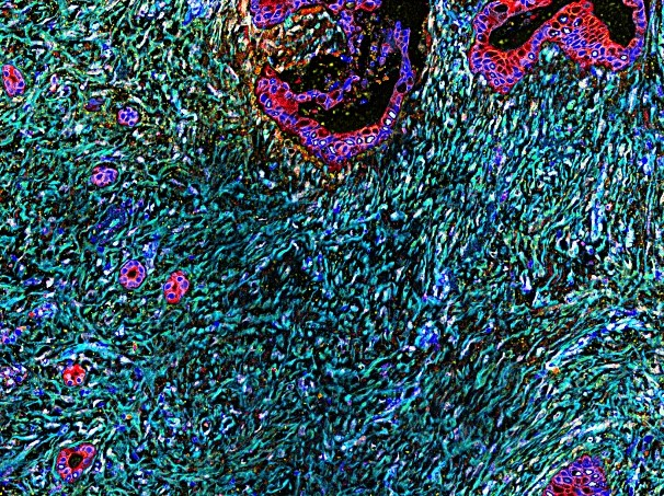 Multicolor microscopy image of human pancreatic cancer. Red areas depict cancer cells and cyan marks the desmoplastic tumor microenvironment, which is enriched in fibroblastic cells positive for 3D-adhesions (evident in cyan areas marked by lighter yellow/white colors).  Note the vast areas covered by the fibrous (cyan) desmoplasia in comparison to the modest amounts of cancer cells (red).Image credit: Neelima Shah and Edna Cukierman.