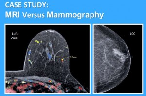 Breast Mri A Good Study But Not Everything We Hoped For Fox