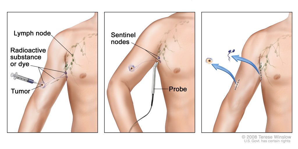 Is Sentinel Lymph Node Biopsy The Best Tool To Diagnose Melanoma