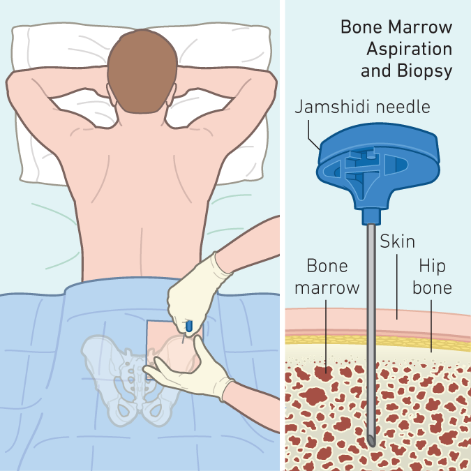 With a bone marrow transplant, the donor is put under anesthesia in the operating room and bone marrow is harvested from the back of the hip bones.
