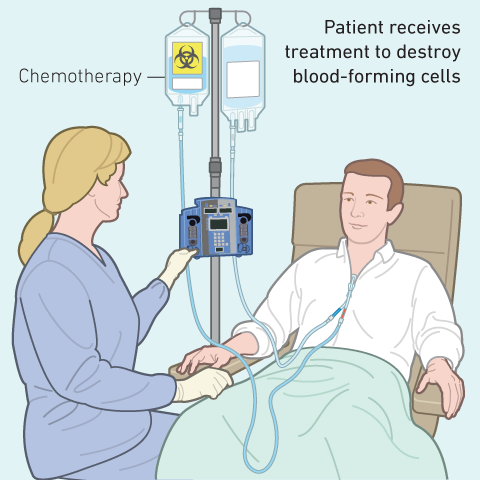 A bone marrow transplant may involve administering chemotherapy alone or in combination with total body irradiation to rid the body of disease.