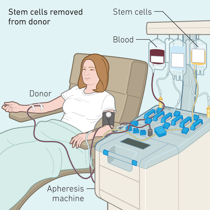 With peripheral blood stem cell transplant, the cells from the donor are harvested from an apheresis machine.