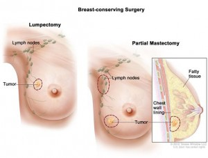 Breast cancer reconstructions