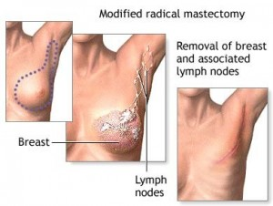 Mastectomy image (courtesy of health.allrefer.com)