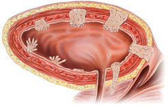 muscle-invasive-bladder-cancer