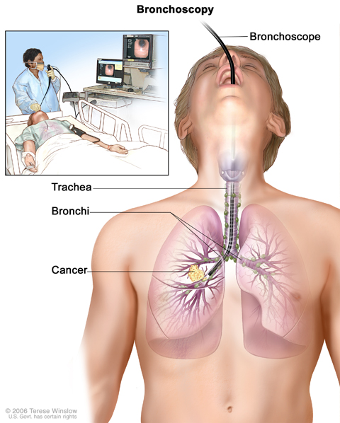 Bronchoscopy. A bronchoscope is inserted through the mouth, trachea, and major bronchi into the lung, to look for abnormal areas. A bronchoscope is a thin, tube-like instrument with a light and a lens for viewing. It may also have a cutting tool. Tissue samples may be taken to be checked under a microscope for signs of disease.