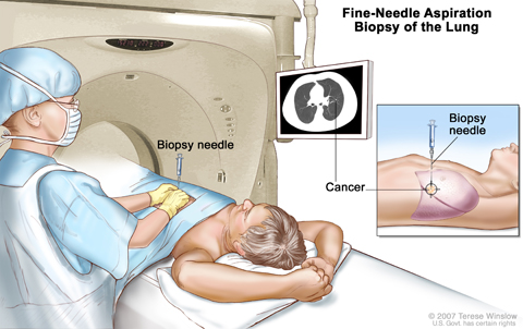 Fine-needle aspiration biopsy of the lung. The patient lies on a table that slides through the computed tomography (CT) machine, which takes x-ray pictures of the inside of the body. The x-ray pictures help the doctor see where the abnormal tissue is in the lung. A biopsy needle is inserted through the chest wall and into the area of abnormal lung tissue. A small piece of tissue is removed through the needle and checked under the microscope for signs of cancer.