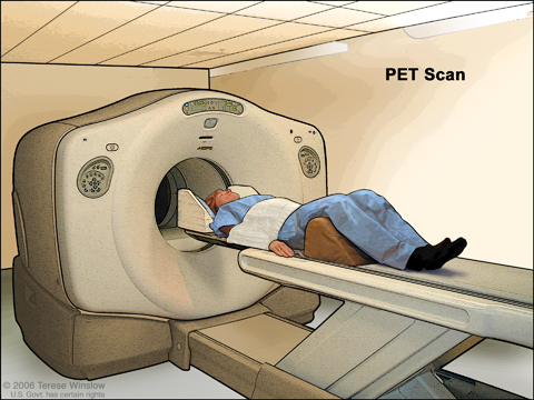 PET (positron emission tomography) scan. The patient lies on a table that slides through the PET machine. The head rest and white strap help the patient lie still. A small amount of radioactive glucose (sugar) is injected into the patient's vein, and a scanner makes a picture of where the glucose is being used in the body. Cancer cells show up brighter in the picture because they take up more glucose than normal cells do.