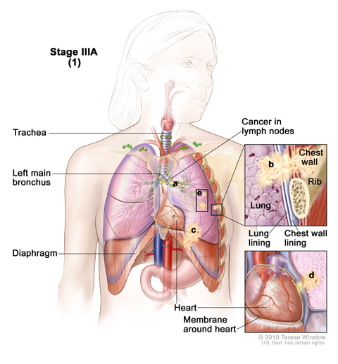 Stage IIIA non-small cell lung cancer (1). Cancer has spread to certain lymph nodes on the same side of the chest as the primary tumor. The cancer may have spread to (a) the main bronchus; (b) lung lining, chest wall lining, or chest wall; (c) diaphragm; and/or (d) membrane around the heart; and/or (e) there may be one or more separate tumors in the same lobe of the lung. Cancer may have spread to the nerve that controls the diaphragm, and part or all of the lung may have collapsed or become inflamed (not shown).