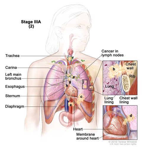 Cancer has spread to certain lymph nodes on the same side of the chest as the primary tumor. The cancer may have spread to (a) the main bronchus; (b) the lung lining, chest wall lining, or chest wall; (c) diaphragm; (d) heart and/or membrane around the it; (e) major blood vessels that lead to or from the heart; (f) trachea; (g) esophagus; (h) sternum; and/or (i) carina; and/or (j) there may be one or more separate tumors in any lobe of the same lung. Cancer may have spread to the nerves that control the diaphragm and larynx, and the whole lung may have collapsed or become inflamed (not shown).