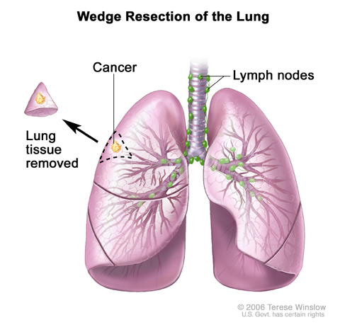 Wedge resection of the lung. Part of the lung lobe containing the cancer and a small amount of healthy tissue around it is removed.