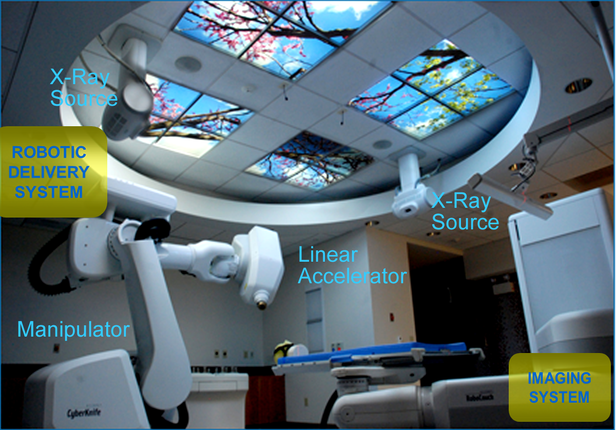 The CyberKnife at the Fox Chase Buckingham facility.