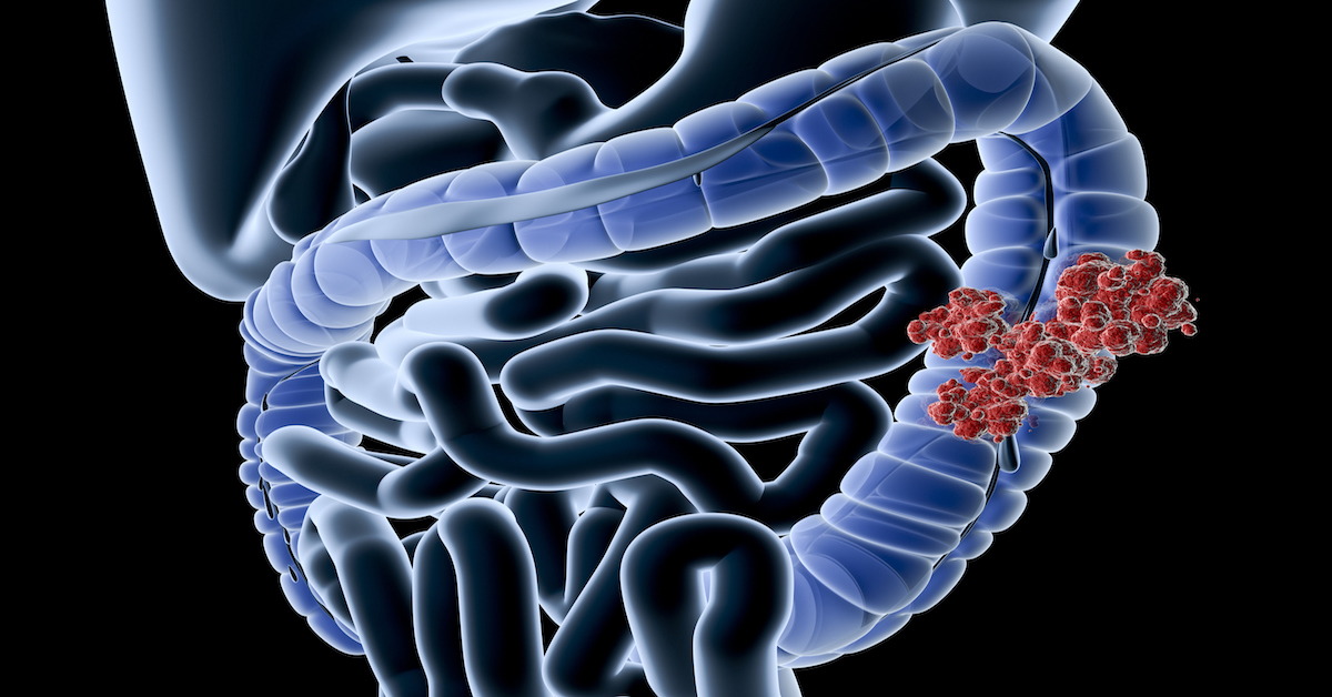 A New Stage 4 Clinical Trial For Colorectal Cancer Fox Chase Cancer Center Philadelphia Pa