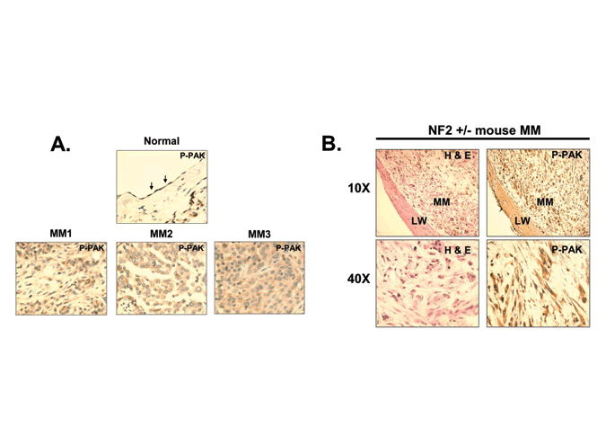 Immunohistochemical staining for phosphorylated PAK
