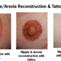 Neal s topham md facs for Areola tattoo after mastectomy